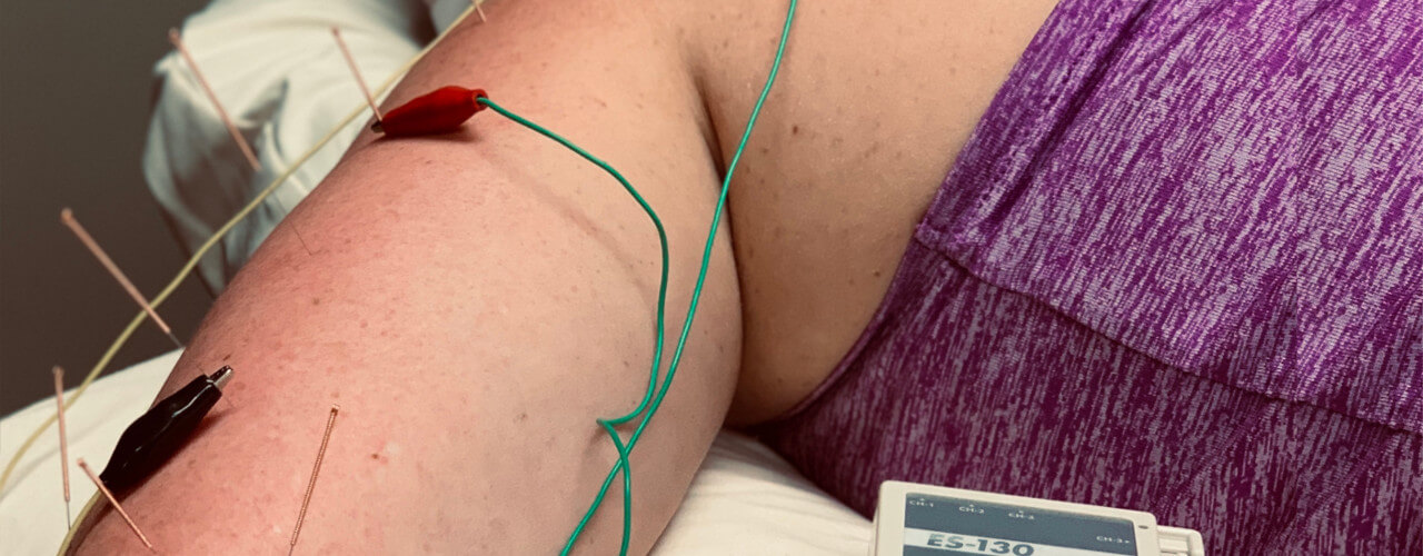 Integrative Dry Needling Uniontown, OH